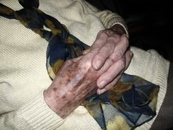 hands with age spots of an old woman
