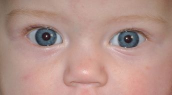 face baby with blue eye