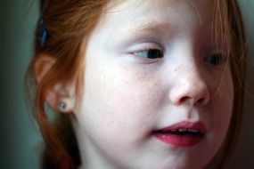The face of a little girl with red hair