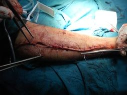 surgery orthopedic arm hospital