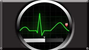 ecg bless you pulse frequency
