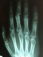 Hand Fracture Broken Injury