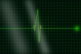 electrocardiogram heartbeat drawing