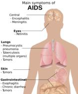 human body aids symptoms